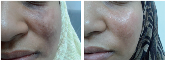 pigmentation and Age spots